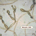 Alternaria growth can be gray and furry, in areas of water intrusion (such as under a shower pan) and condensation.