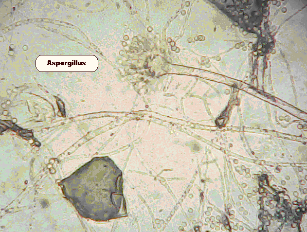 Immature Aspergillus fruiting body that produces the spores - like a flower produces seeds. These spores can grow in human tissue if the immune system is overwhelmed.